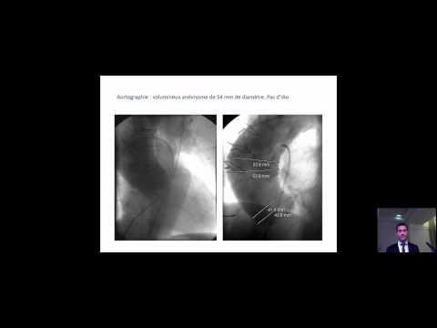 cardiomyopathie hypertrophique étourdissements évanouissement