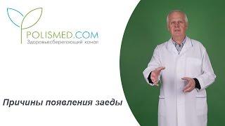 видео Аллергия на витамины: как проявляется и что делать