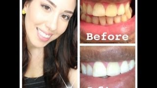 My At Home Teeth Whitening Routine (WITH BEFORE AND AFTER PICTURES)