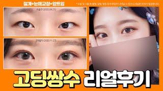 고등학생 쌍수 후기 [절개(인라인)+눈매교정+앞트임] …
