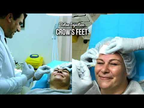 Botox Injection in Crow's Feet - with Dr Allen Rezai