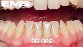 Чистка зубов системой Air Flow(, 2016-03-03T11:32:47.000Z)