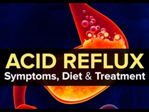 How To Cure Acid Reflux (GERD) and Heartburn Fast and Naturally (Best Home Remedies)