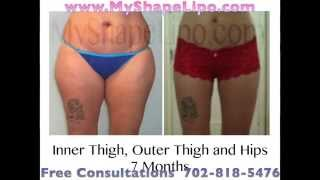 Thighs Liposuction, Inner Thigh, Outer Thigh, Full Thigh; Before and After, MyShape Lipo