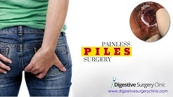 Piles Surgery Kolkata    Colorectal, Anorectal Surgery Kolkata    Painless Piles Stapler Surgery