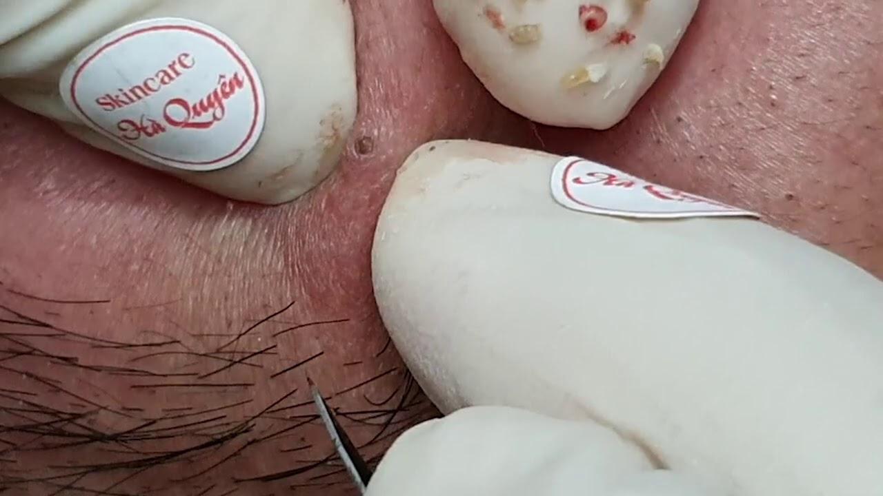 |308|Blackheads & Acne treatment in Ha Quyen Spa on 24/10/2020 Part 1 -Điều trị mụn tại Hà Quyên spa