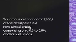 hqdefault - Primary Squamous Cell Carcinoma Of Kidney