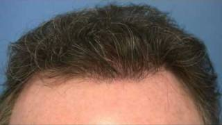 Hair Transplant Video - Dr Hasson - 4333 Grafts - 1 Session