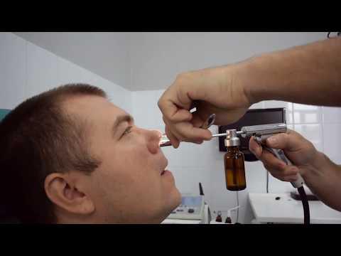 Лечение гайморита у взрослых. Как вылечить гайморит без прокола? ЯМИК процедура.