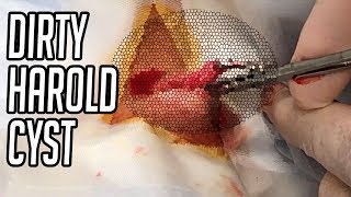 Dirty Harold Neck Cyst Removal with Dr. Gilmore Share This Video