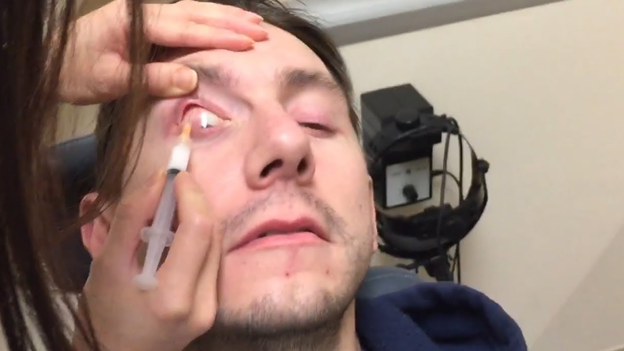 Steroid injection in eye for uveitis organon obs sustanon