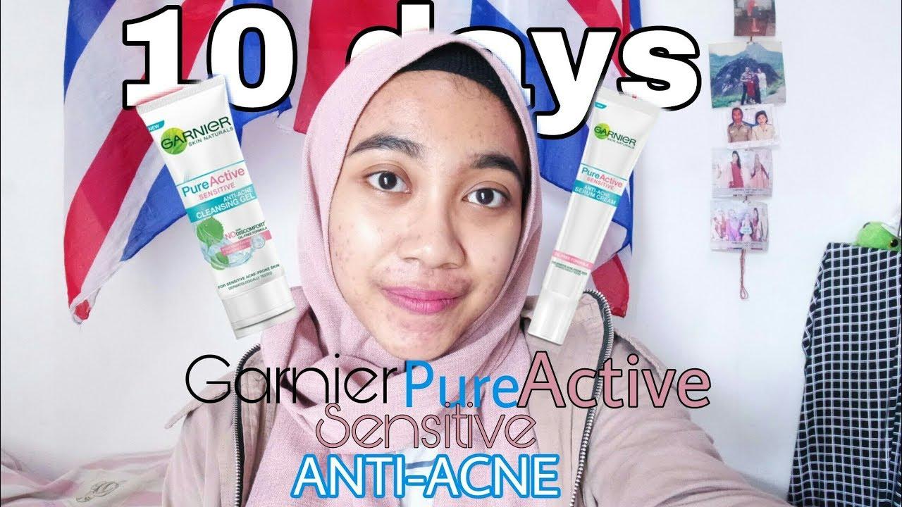 Review Garnier Pure Active Sensitive Anti Ance 10 Days Bahasa Acne Cleansing Gel Foam 100 Ml Jerawat Lagi