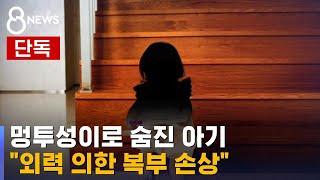 """[단독] """"멍투성이 아기, 외력 의한 복부 손상사 소견"""" / SBS"""
