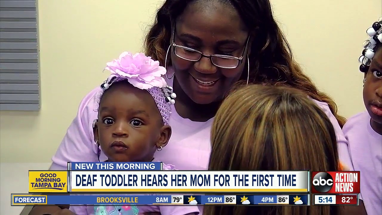 Deaf toddler gets cochlear implants, hears mom say 'I love you'
