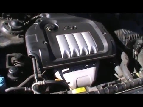 hyundai sonata 2 4 liter timing belt water pump replacement full