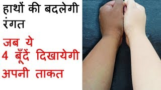 Manicure at Home - घर पर मैनीक्योर कैसे करें - How To Do Manicure At Home in Hindi by Sonia Goyal