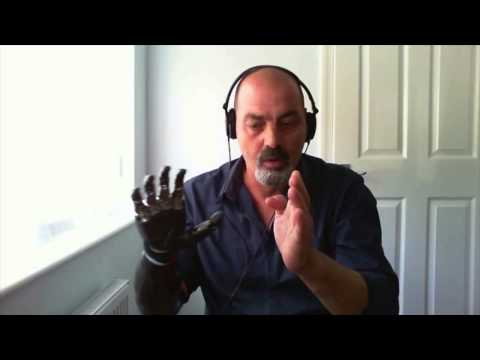 Nigel Ackland on Singularity 1 on 1: Ordinary...Extraordinary - Life with a Bionic Arm