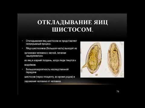 Шитостома  у человека