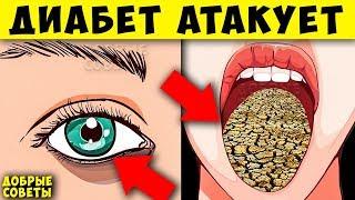 7 Ранних признака, ПредДиабета, о которых Вы не знаете + продукты Провокаторы