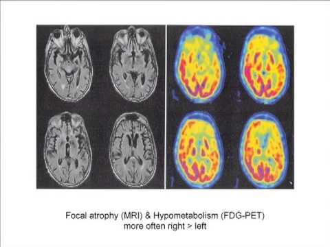 Non-Alzheimer's Disease Dementias