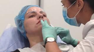 АирисКом: обучение косметологии. Практические занятия: биоревитализация