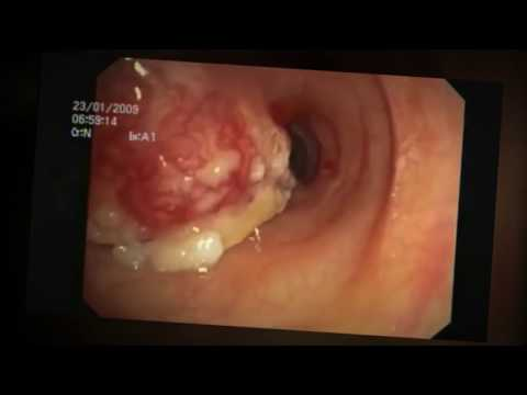 What is Trachea Windpipe Cancer