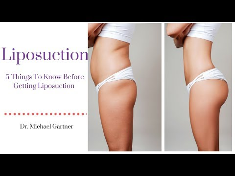 5 Things To Know Before Getting Liposuction | Dr. Michael Gartner