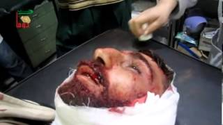 Syria | Douma | An injured Man Takes His Last Breaths | Dec 04, 2012 | 18+