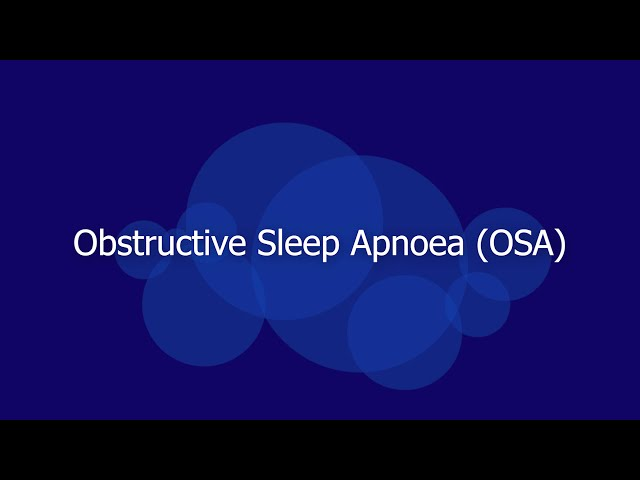 Obstructive Sleep Apnoea  (OSA) and RFA  Treatment