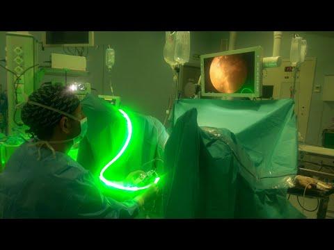 descargador de video de cirugía benigna de adenoma de próstata