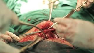 TRIBUN-VIDEO.COM - Viral kisah seorang ibu muda yang mendadak lumpuh usai melahirkan. Wanita bernama.