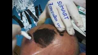 Micropigmentare scalp clinica SlimArt artist Zarescu Dan ZDM tatuaj scalp cu roller Oron57