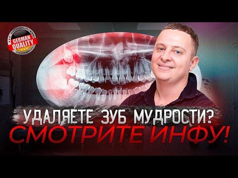 Что нельзя делать после удаления зуба мудрости. Рекомендации Немецкого Имплантологического Центра
