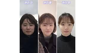 예뻐졌다 콘테스트 1위 광화문점 박태희 고객님 #솔직후…