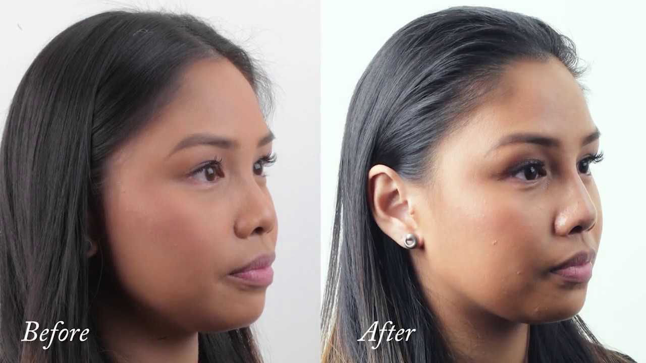 non surgical rhinoplasty for asian noses - youtube