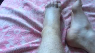 Разрыв, или частичный разрыв связок голеностопа(Подвернул вовнутрь, почувствовал хруст, сразу же опухоль с яйцо, думал сломал,рентген перелома не выявил...., 2013-05-18T07:12:28.000Z)