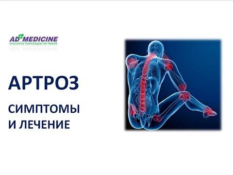 Артроз: симптомы и лечение