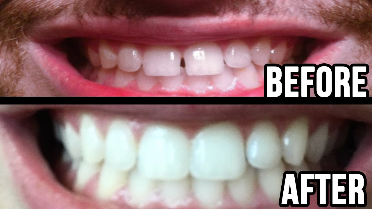 Fixed My Teeth Gap Without Braces 45min Work Youtube