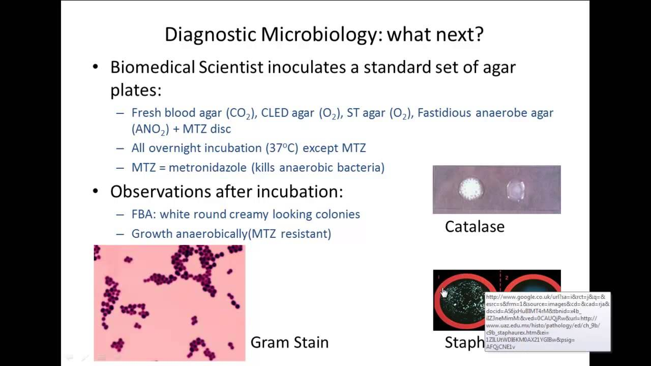 API identification of bacteria - example - YouTube