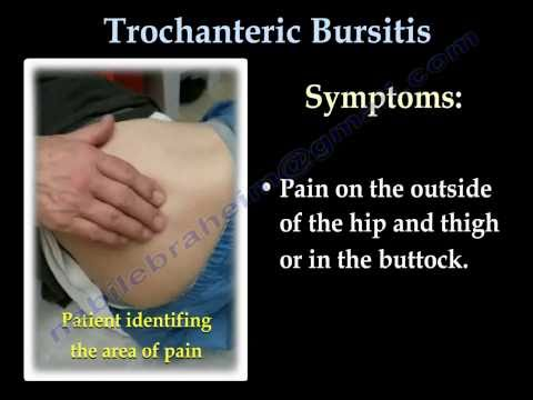Trochanteric Bursitis , hip bursitis- Everything You Need To Know - Dr. Nabil Ebraheim