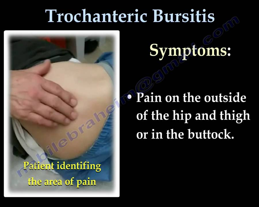 Trochanteric Bursitis   Hip Bursitis- Everything You Need To Know - Dr  Nabil Ebraheim