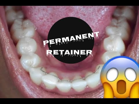HOW TO CLEAN A PERMANENT RETAINER AFTER BRACES!!