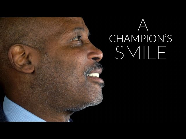 A Champion's Smile | A Makeover Transformation - Brighter Image Lab Spectacular Timepiece -Must See!