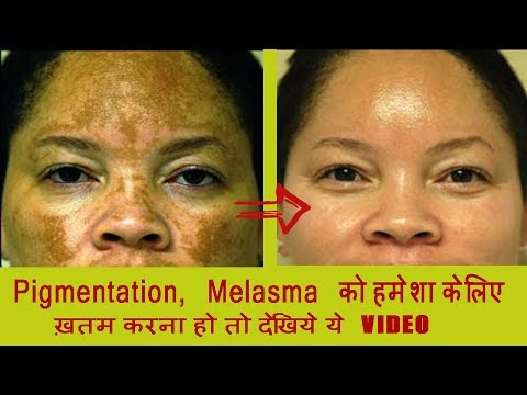 3 simple Home Remedies for Pigmentation, Hyper pigmentation, Brown Spots, Discoloration  MUST TRY