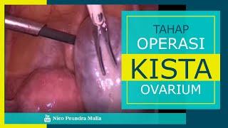 Penampilan Baru Artis Feby Febiola | Berjuang  Lawan Penyakit Kista Ovarium.