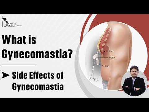 Gynecomastia ka A to Z . Call or Whatsapp Divine Cosmetic Surgery 9811994417