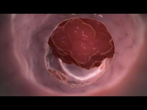 Как проявляет себя опухоль кишечника