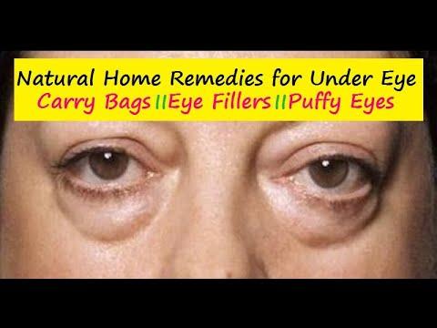 Get Rid Under Eye Bags Home Remedies