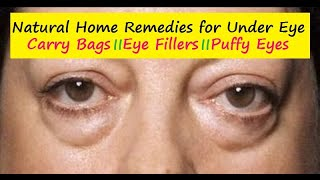 How to get rid of Under Eye Bags - 9 Excellent Home Remedies