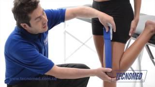 Muscular la parte superior del en dolor muslo severo